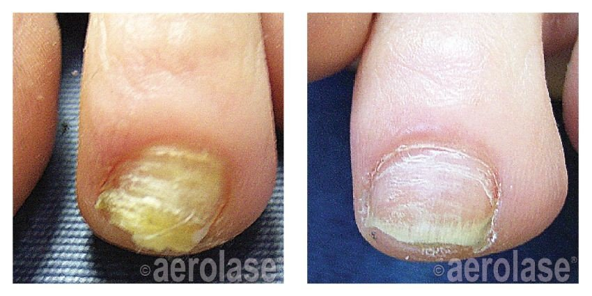 Cosmetic Nail Treatment Florence SC